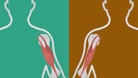 دیستروفی عضلانی دوشن و بکر