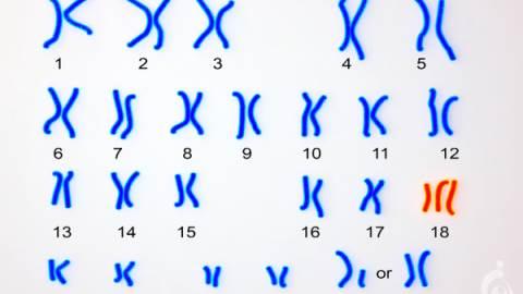 تریزومی 18 - سندروم ادواردز