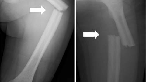 دیسپلازی فک-تنه استخوان