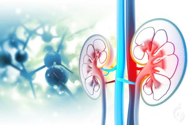 سندروم نارسایی کلیوی-میوکلونوس عملی