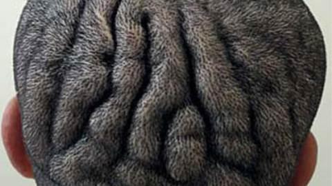 سندروم Beare-Stevenson cutis gyrata
