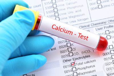 آزمایش کلسیم Ca