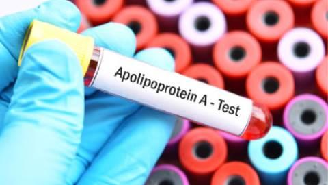 آزمایش آپولیپوپروتئین