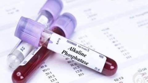 آزمایش آلکالین فسفاتاز (ALP)