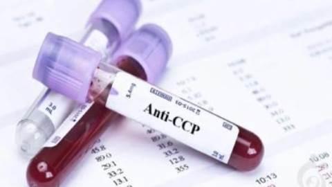 آزمایش آنتی بادی علیه پپتید سیترولینه حلقوی (Anti-CCP)