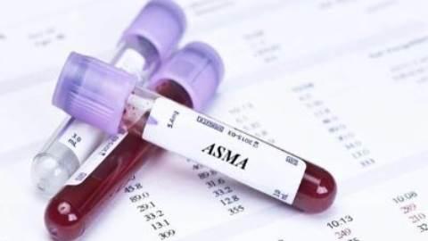 آنتی بادی علیه ماهیچه صاف (ASMA)