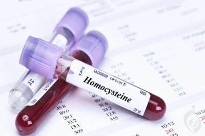 آزمایش هموسیستئین (HCY)