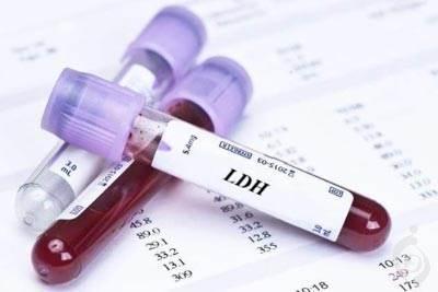 آزمایش لاكتات دهيدروژناز (LDH)