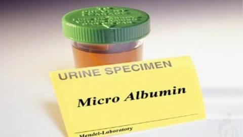 آزمایش میکروآلبومین (MA)