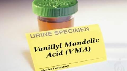 آزمایش وانیلیل مندلیک اسید (VMA)