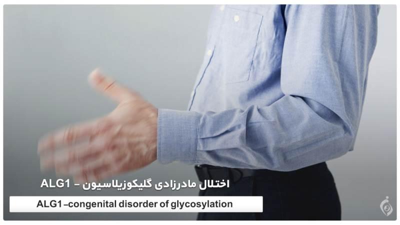 اختلال مادرزادی گلیکوزیلاسیون - ALG1