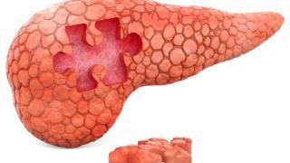 جهش مستعد کننده ابتلا به سرطان پانکراس شناسایی شد