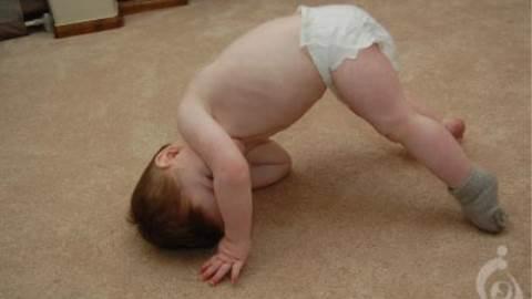 دیستروفی عضلانی مادرزادی فوکویاما