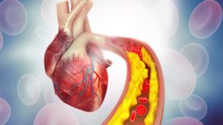 جهش ژنتیکی که انسان ها را به بیماری های قلبی مستعد می کند