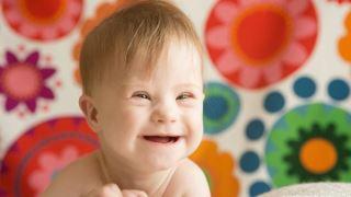 خطر ابتلا به لوسمی حاد (ALL) در کودکان مبتلا به سندرم داون