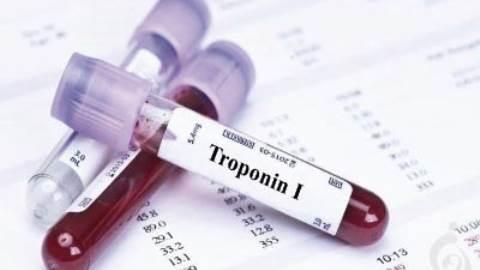آزمایش تروپونین