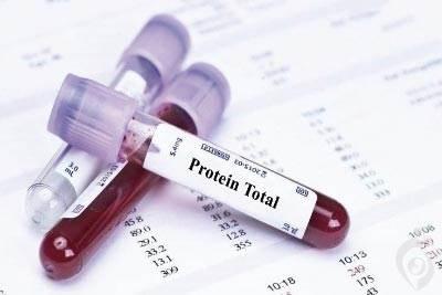آزمایش پروتئین توتال (PT)