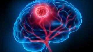 آزمایش خون جدیدی که تومورهای مغز را با 87 درصد دقت تشخیص می دهد