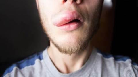 آنژیوادم ارثی یا نقص مهارکننده C1 استراز