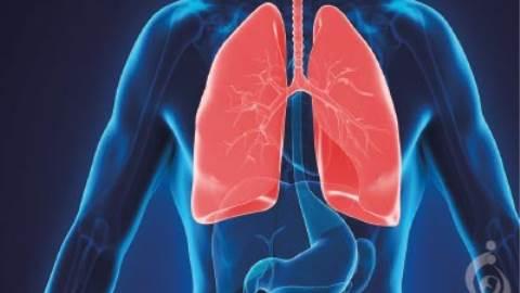 میوپاتی ارثی همراه با نارسایی تنفسی زود هنگام