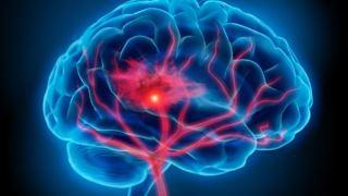 آزمایش ژنتیک می تواند خطر ابتلا به سکته مغزی را از بدو تولد تشخیص دهد