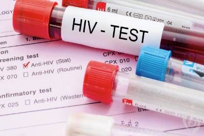 تشخیص مولکولی ایدز HIV