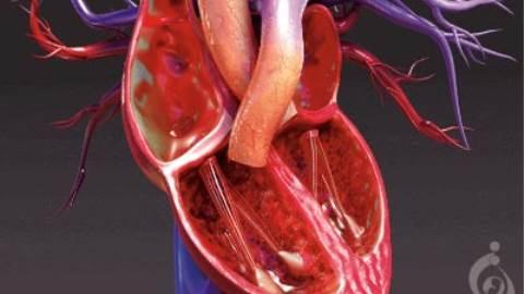 کاردیومیوپاتی آریتموژنیک بطن راست