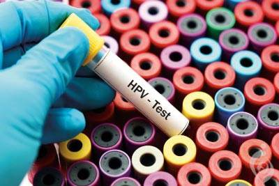 آزمایش HPV (اچ پی وی) ویروس پاپیلومای انسانی