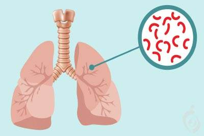 تشخیص مولکولی توبرکلوزیس (سل)