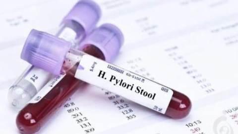 تست آنتی ژن هیلیکوباکتر پیلوری در مدفوع
