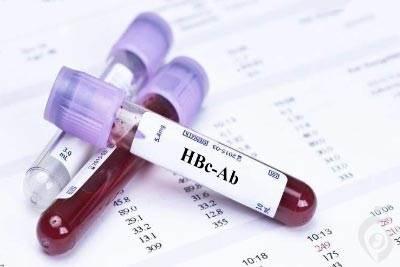 آزمایش anti-HBc , HBc Ab آنتی بادی هسته هپاتیت B