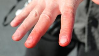 انگشت کووید یکی دیگر از علائم ابتلا به کرونا است