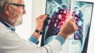 ویروس کرونا باعث ایجاد لخته های خونی کشنده در ریه می شود