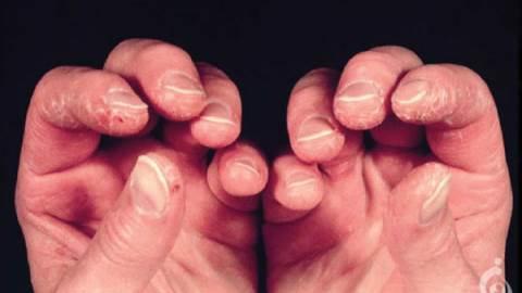 میوپاتی التهابی ایدیوپاتیک