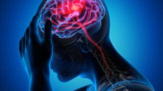 انعقاد بیش از حد خون و سکته مغزی در بیماران مبتلا به کرونا
