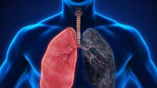 کرونا و بیماری انسداد ریوی مزمن (COPD)