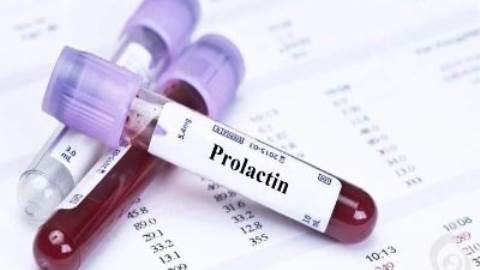 آزمایش پرولاکتین (PRL)