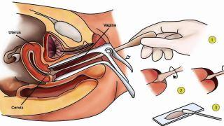 هرآنچه که باید از آزمایش پاپ اسمیر (pap smear) بدانید!
