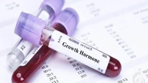 آزمایش هورمون رشد (GH) , هورمون سوماتوتروپین