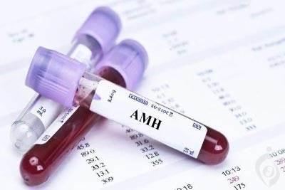 آزمایش هورمون آنتی مولرین (AMH)