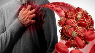 ویروس کرونا باعث لخته شدن خون می شود