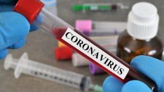 آزمایش خون کرونا چه چیزی را مشخص می کند؟