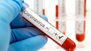 آزمایش خون کرونا (هرآنچه که باید از تست خون برای مشخص شدن کرونا بدانید)
