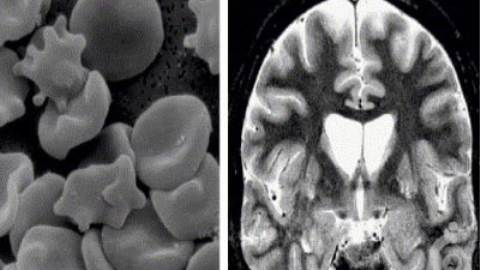 سندرم نوروآکانتوسیتوز مک لود