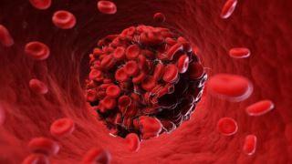 لخته خون نشانه اولیه کرونا