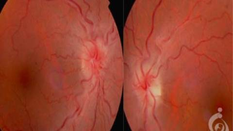 نوروپاتی چشمی ارثی لبر