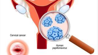 ویروس hpv در بارداری