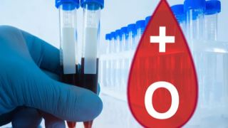 کاهش خطر ابتلا به کرونا در افراد با گروه خونی O