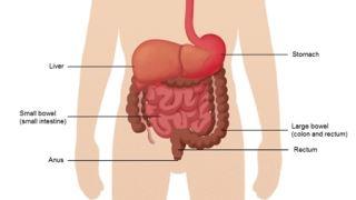 بیماری یبوست چیست و چه علائمی دارد؟