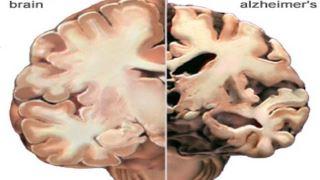آلزایمر چیست ؟ از علائم و راه های پیشگیری از آن بیشتر بدانید !
